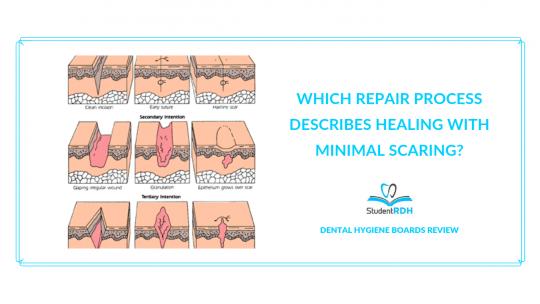repair process, primary intention, secondary intention, third intention, dental hygiene exam prep