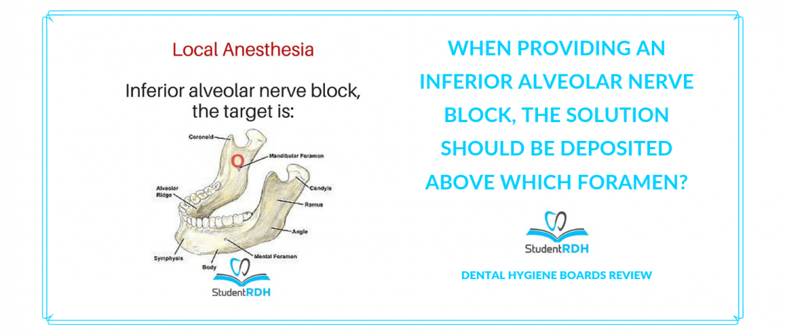 local anesthesia, inferior alveolar nerve block, dental hygiene exam prep