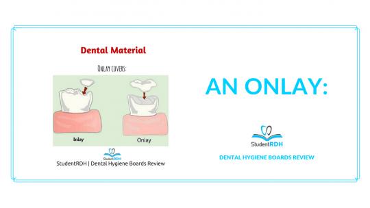 dental material, onlay, dental hygiene exam prep