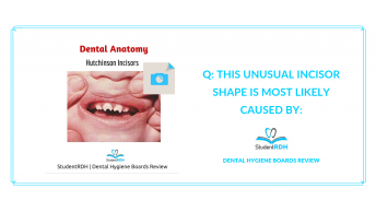 dental anatomy, hutchinson incisors, dental hygiene exam prep