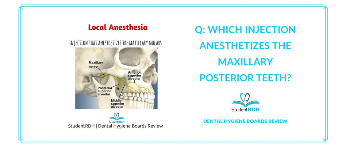 local anesthesia, maxillary molars, nerve block, dental hygiene exam prep