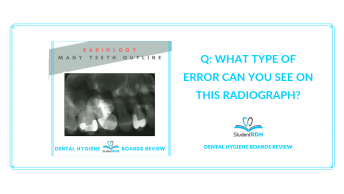 radiology, radiograph errors, dental hygiene national board review