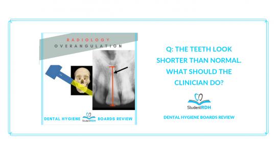 radiology, overangulation, dental hygiene exam prep