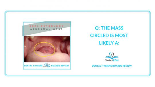 oral pathology, mass, lingual thyroid, dental hygiene exam prep
