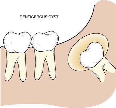 dentigerous cyst, dental hygiene exam prep
