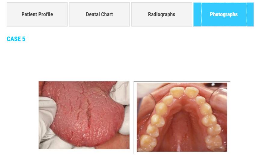 nbdhe case study, dental hygiene exam prep