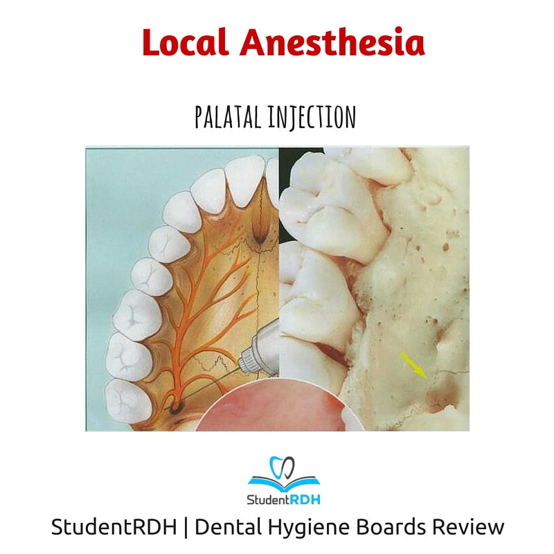 local anesthesia, palatal injection, nerve block, dental hygiene exam prep